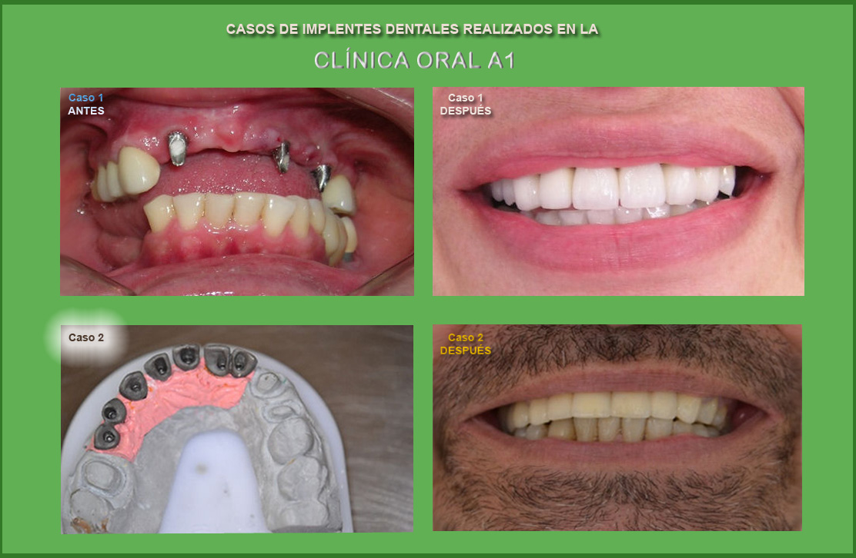 implantes-dentales-A1