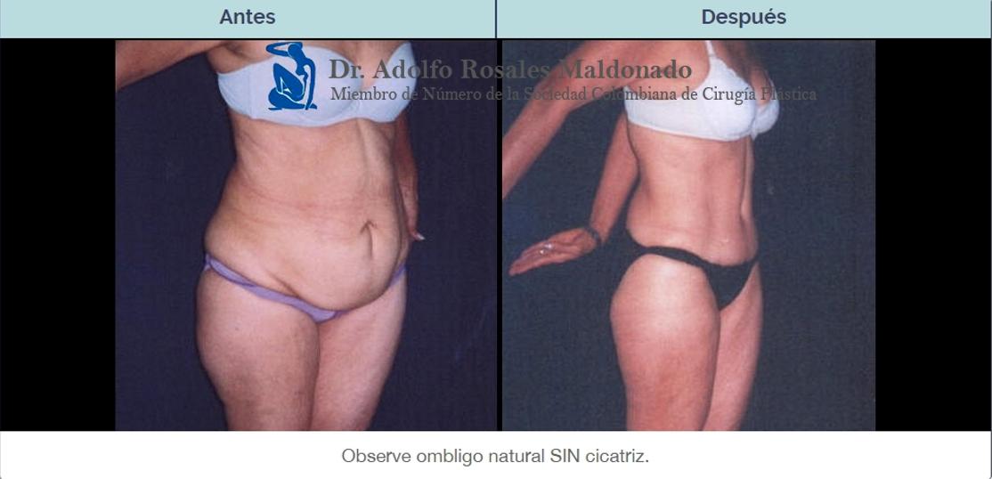 caso abdominoplastia dr Rosales