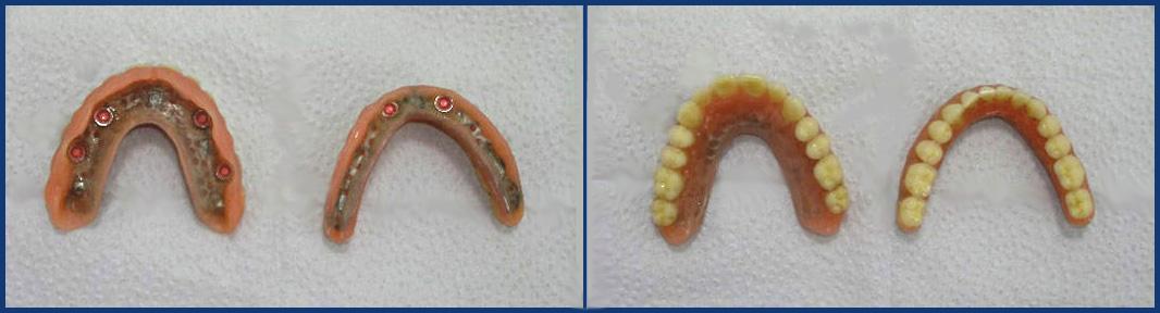 protesis-con-implantes