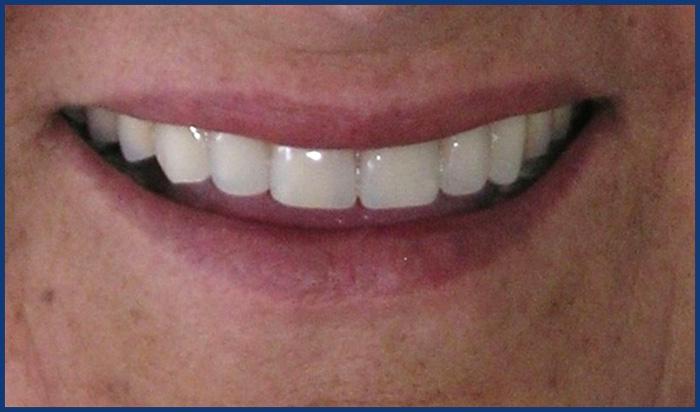 protesis-con-implantes2