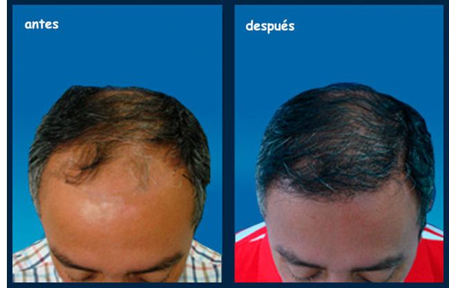 Implante de cabello valor