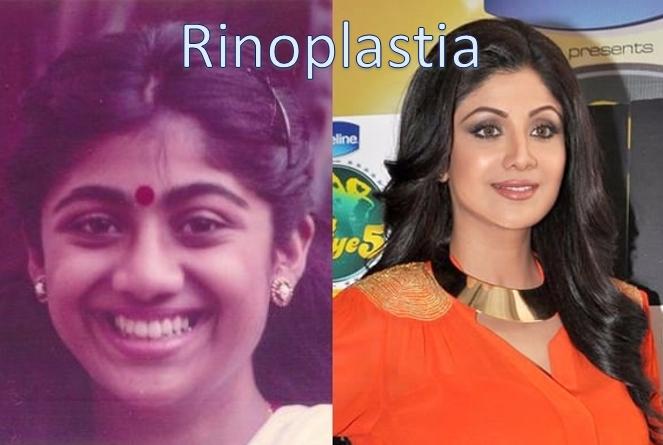 antes y después de Shilpa Shetty