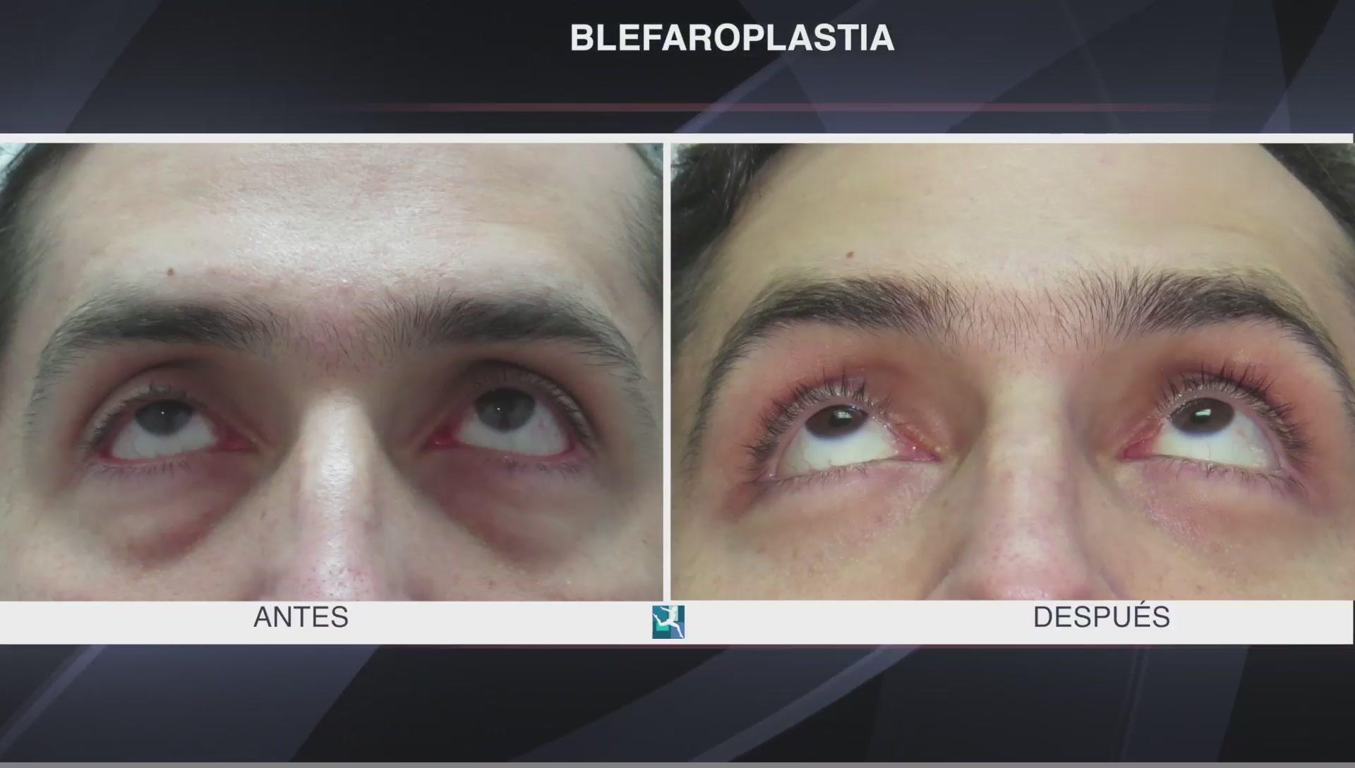 antes y despues de un caso de cirugia de parpados
