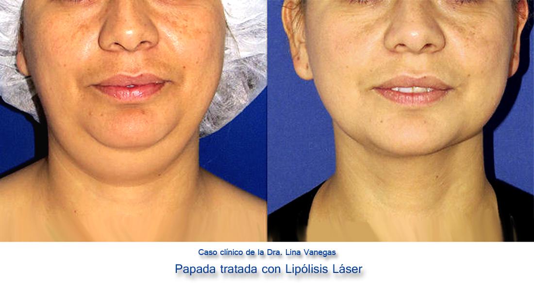 Suavizar el área debajo de la barbilla con liposucción.