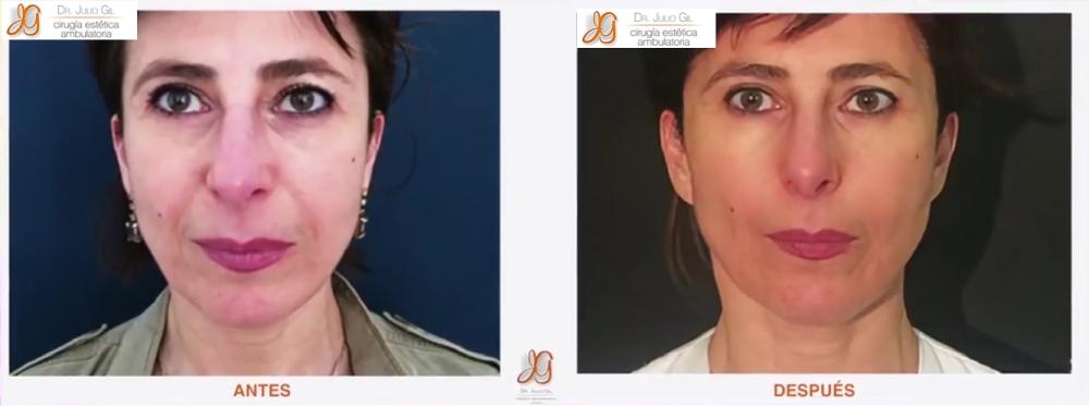 mujer con rejuvenecimiento facial sin cirugia