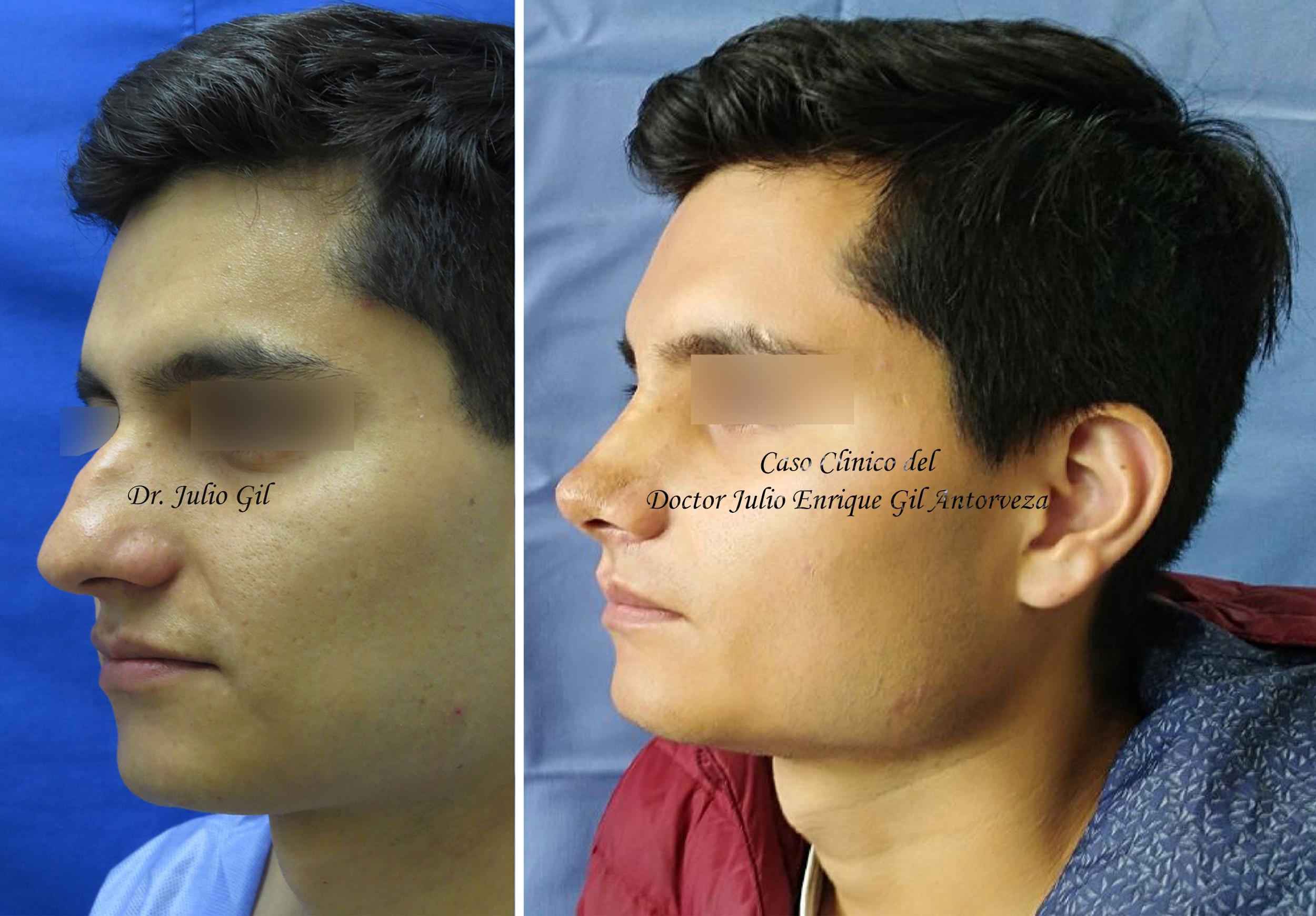 Adelgazar cachetes cirugia endoscopica